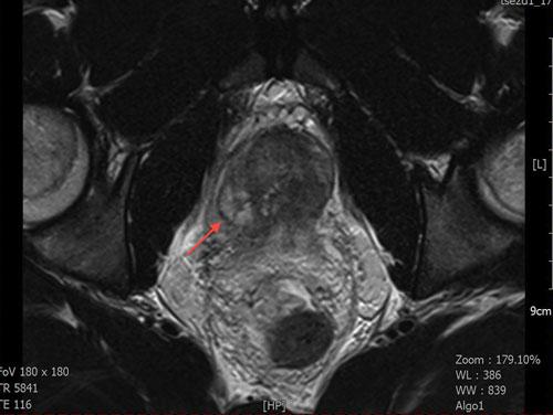 chronic prostatitis mri
